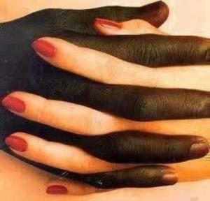 Vi är inte rasister